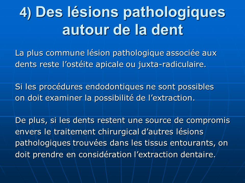 4) Des lésions pathologiques autour de la dent La plus commune lésion pathologique associée aux dents reste lostéite apicale ou juxta-radiculaire. Si