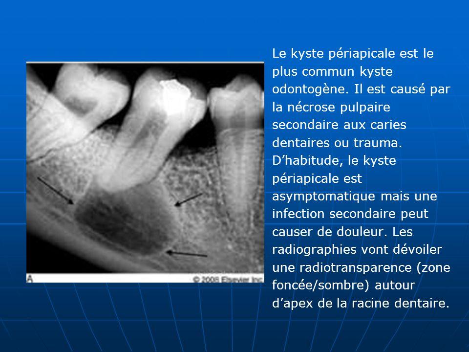 Le kyste périapicale est le plus commun kyste odontogène. Il est causé par la nécrose pulpaire secondaire aux caries dentaires ou trauma. Dhabitude, l