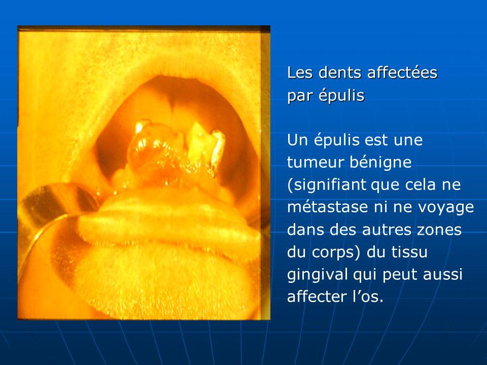 Les dents affectées par épulis Un épulis est une tumeur bénigne (signifiant que cela ne métastase ni ne voyage dans des autres zones du corps) du tiss