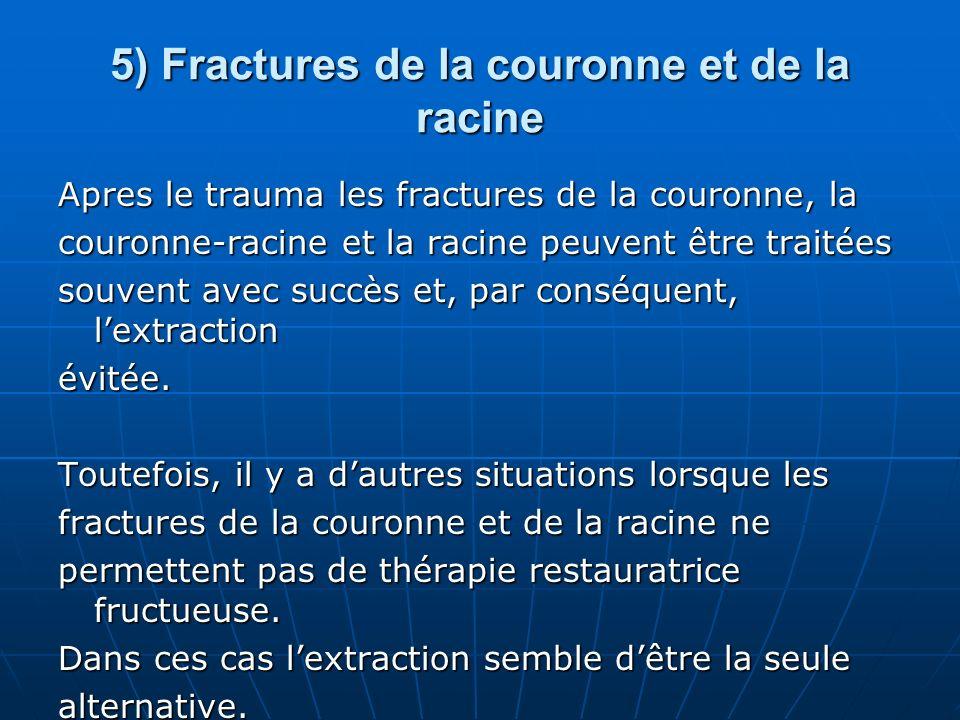 5) Fractures de la couronne et de la racine Apres le trauma les fractures de la couronne, la couronne-racine et la racine peuvent être traitées souven
