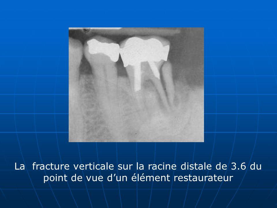 La fracture verticale sur la racine distale de 3.6 du point de vue dun élément restaurateur