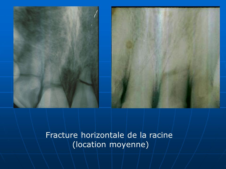 Fracture horizontale de la racine (location moyenne)