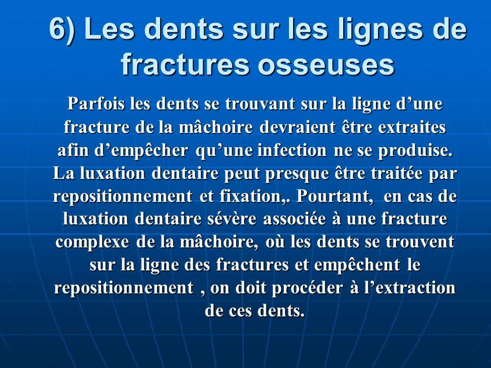 6) Les dents sur les lignes de fractures osseuses Parfois les dents se trouvant sur la ligne dune fracture de la mâchoire devraient être extraites afi