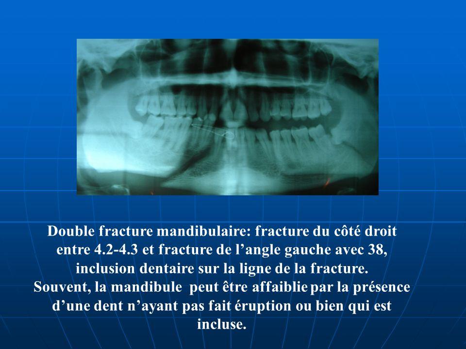 Double fracture mandibulaire: fracture du côté droit entre 4.2-4.3 et fracture de langle gauche avec 38, inclusion dentaire sur la ligne de la fractur