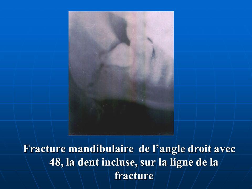 Fracture mandibulaire de langle droit avec 48, la dent incluse, sur la ligne de la fracture