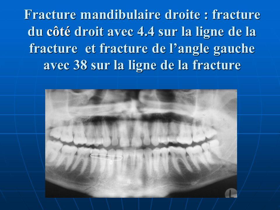 Fracture mandibulaire droite : fracture du côté droit avec 4.4 sur la ligne de la fracture et fracture de langle gauche avec 38 sur la ligne de la fra