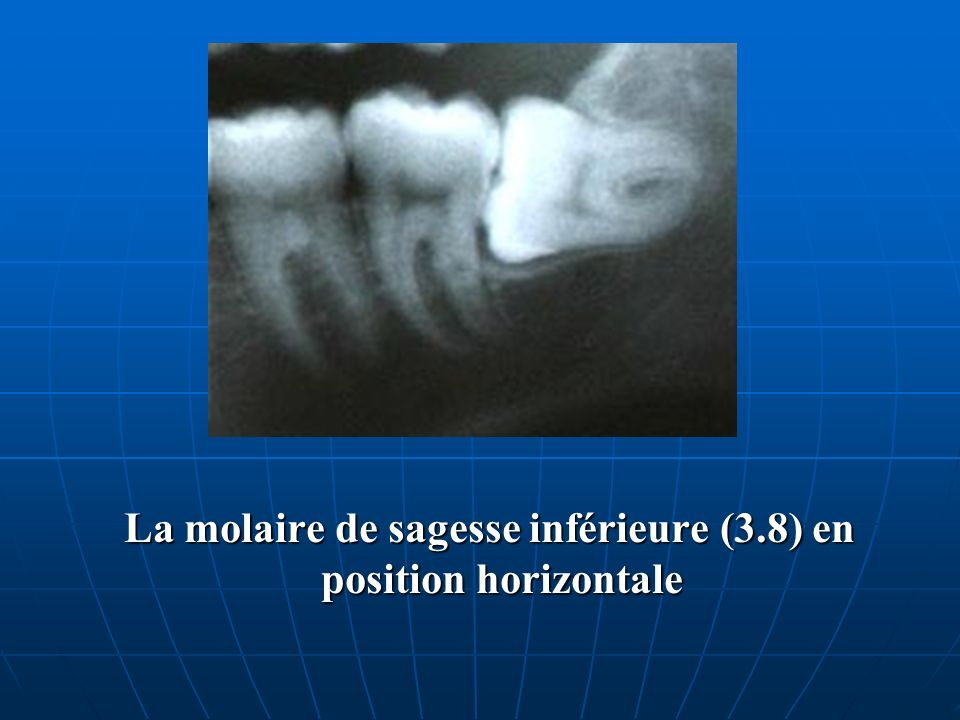 La molaire de sagesse inférieure (3.8) en position horizontale La molaire de sagesse inférieure (3.8) en position horizontale