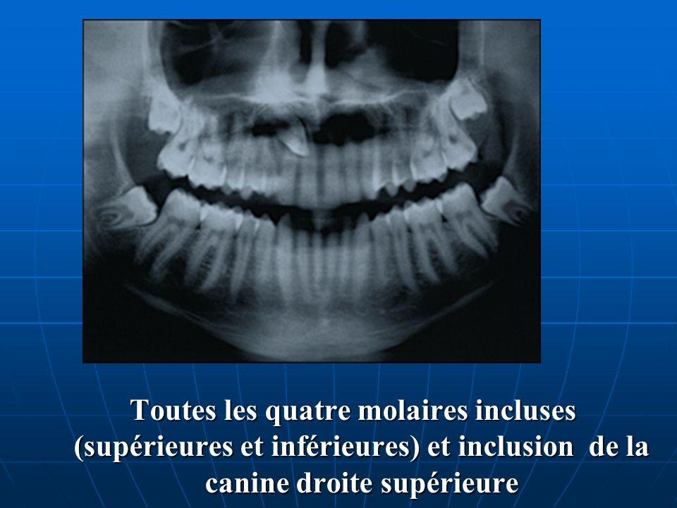 Toutes les quatre molaires incluses (supérieures et inférieures) et inclusion de la canine droite supérieure Toutes les quatre molaires incluses (supé