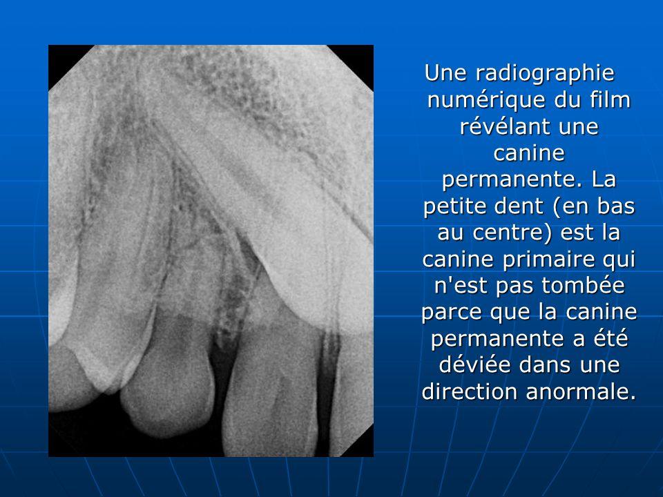 Une radiographie numérique du film révélant une canine permanente. La petite dent (en bas au centre) est la canine primaire qui n'est pas tombée parce