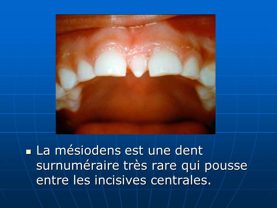 La mésiodens est une dent surnuméraire très rare qui pousse entre les incisives centrales. La mésiodens est une dent surnuméraire très rare qui pousse