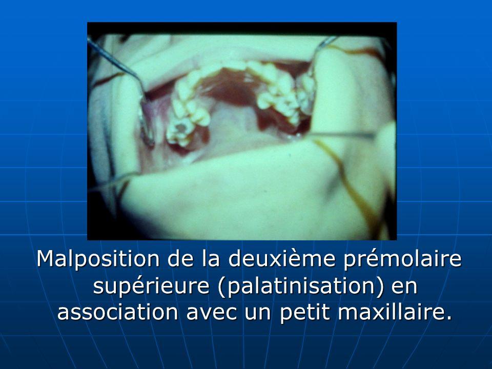 Malposition de la deuxième prémolaire supérieure (palatinisation) en association avec un petit maxillaire. Malposition de la deuxième prémolaire supér