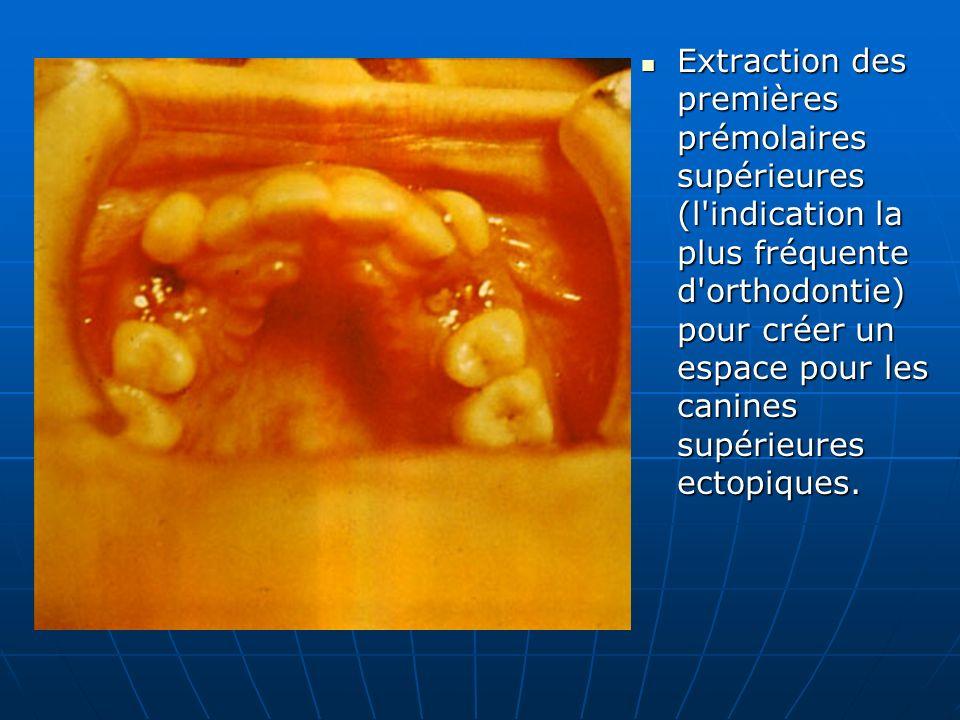 Extraction des premières prémolaires supérieures (l'indication la plus fréquente d'orthodontie) pour créer un espace pour les canines supérieures ecto