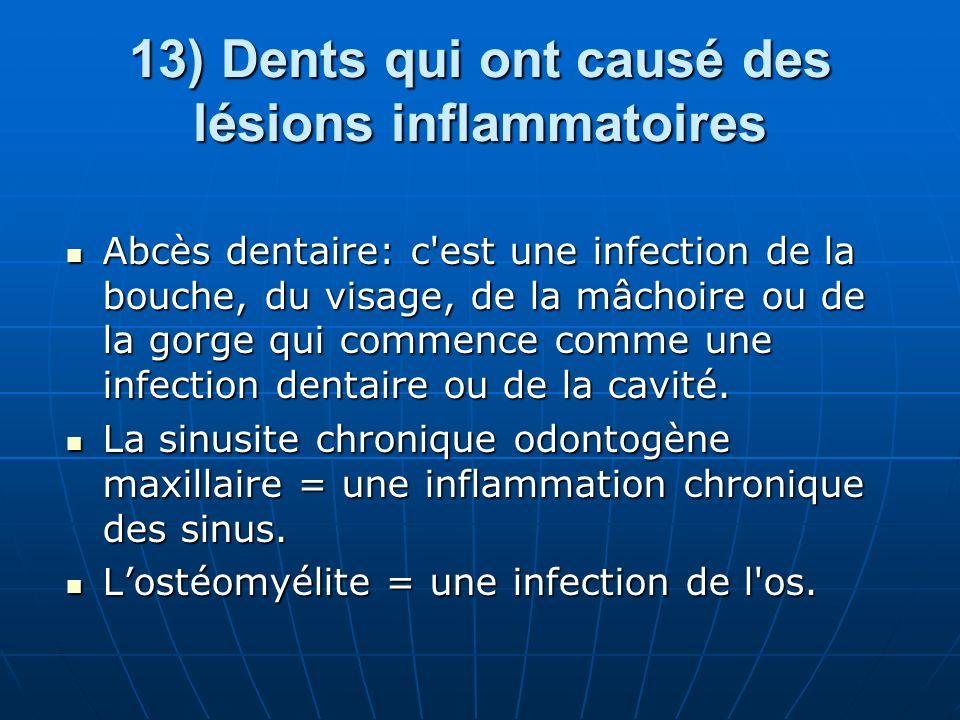 13) Dents qui ont causé des lésions inflammatoires Abcès dentaire: c'est une infection de la bouche, du visage, de la mâchoire ou de la gorge qui comm