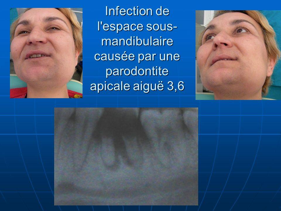 Infection de l'espace sous- mandibulaire causée par une parodontite apicale aiguë 3,6