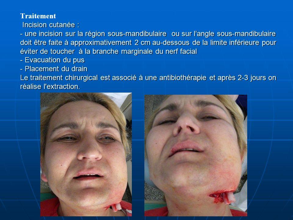 Incision cutanée : - une incision sur la région sous-mandibulaire ou sur langle sous-mandibulaire doit être faite à approximativement 2 cm au-dessous