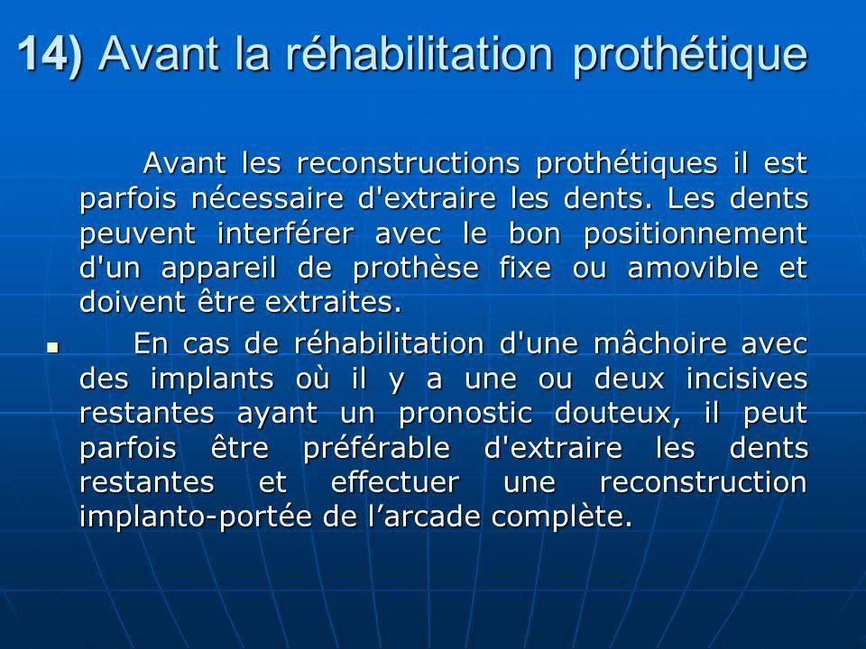 14) Avant la réhabilitation prothétique Avant les reconstructions prothétiques il est parfois nécessaire d'extraire les dents. Les dents peuvent inter