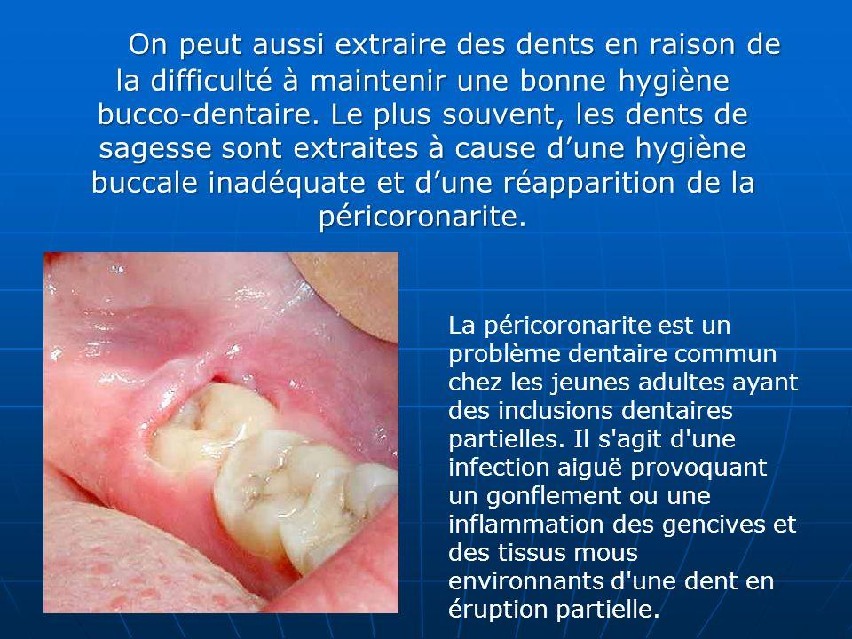 On peut aussi extraire des dents en raison de la difficulté à maintenir une bonne hygiène bucco-dentaire. Le plus souvent, les dents de sagesse sont e
