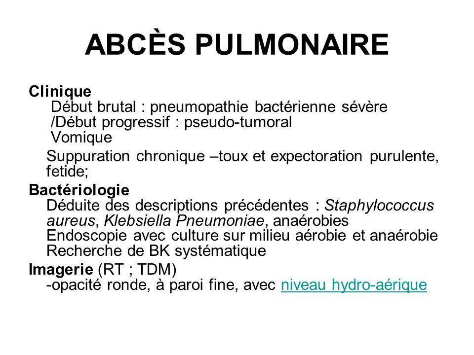 ABCÈS PULMONAIRE Clinique Début brutal : pneumopathie bactérienne sévère /Début progressif : pseudo-tumoral Vomique Suppuration chronique –toux et exp