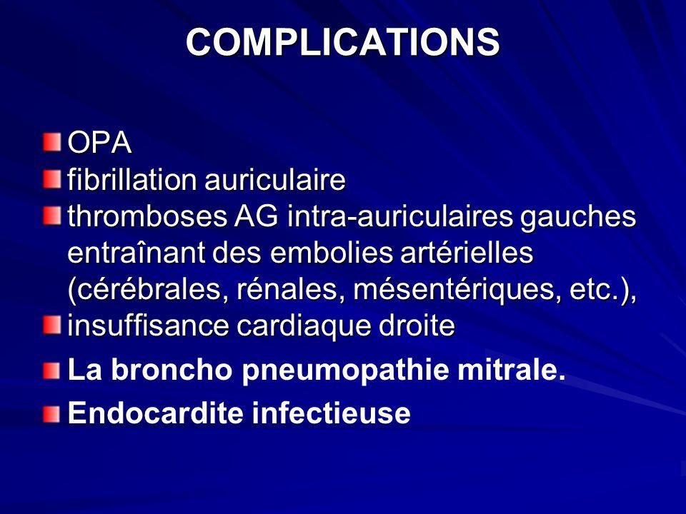 COMPLICATIONS OPA fibrillation auriculaire thromboses AG intra-auriculaires gauches entraînant des embolies artérielles (cérébrales, rénales, mésentériques, etc.), insuffisance cardiaque droite La broncho pneumopathie mitrale.