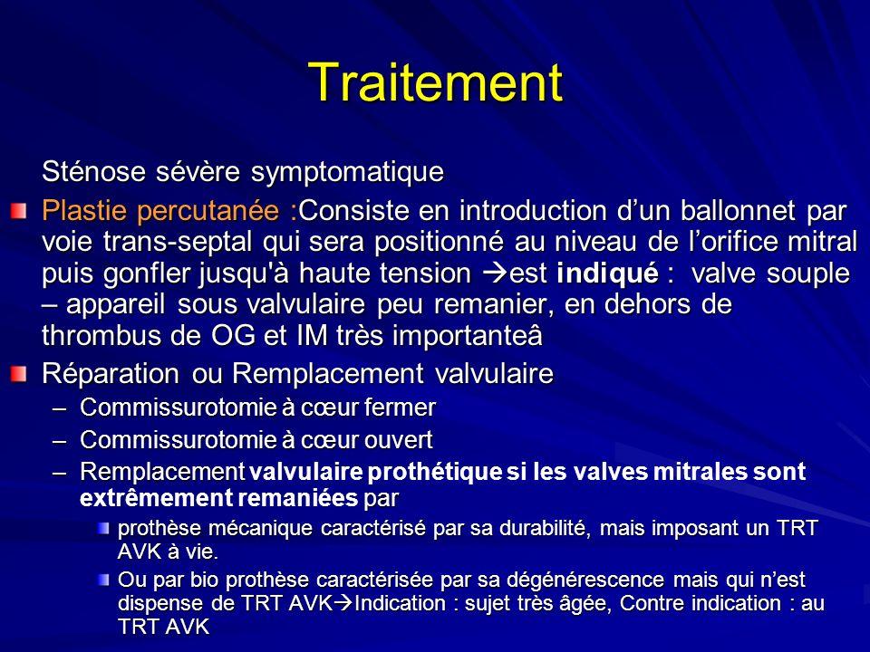 Traitement Sténose sévère symptomatique Plastie percutanée :Consiste en introduction dun ballonnet par voie trans-septal qui sera positionné au niveau de lorifice mitral puis gonfler jusqu à haute tension est indiqué : valve souple – appareil sous valvulaire peu remanier, en dehors de thrombus de OG et IM très importanteâ Réparation ou Remplacement valvulaire –Commissurotomie à cœur fermer –Commissurotomie à cœur ouvert –Remplacement par –Remplacement valvulaire prothétique si les valves mitrales sont extrêmement remaniées par prothèse mécanique caractérisé par sa durabilité, mais imposant un TRT AVK à vie.