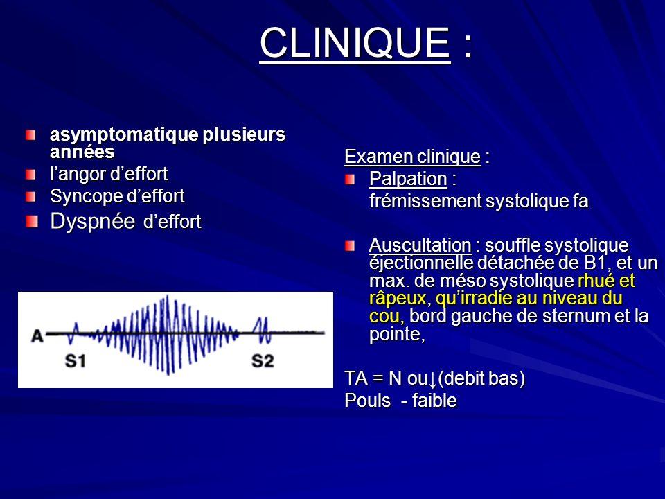 CLINIQUE : Examen clinique : Palpation : frémissement systolique fa Auscultation : souffle systolique éjectionnelle détachée de B1, et un max.