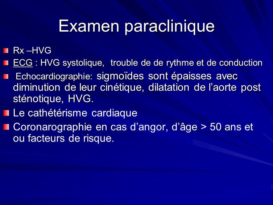 Examen paraclinique Rx –HVG ECG : HVG systolique, trouble de de rythme et de conduction Echocardiographie: sigmoïdes sont épaisses avec diminution de leur cinétique, dilatation de laorte post sténotique, HVG.