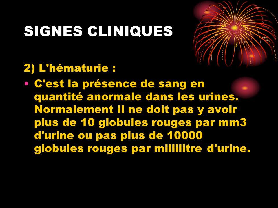 SIGNES CLINIQUES 2) L'hématurie : C'est la présence de sang en quantité anormale dans les urines. Normalement il ne doit pas y avoir plus de 10 globul