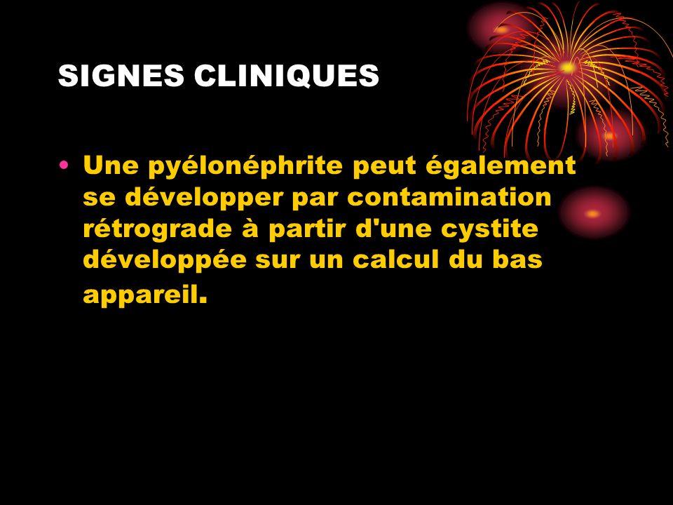 SIGNES CLINIQUES Une pyélonéphrite peut également se développer par contamination rétrograde à partir d'une cystite développée sur un calcul du bas ap