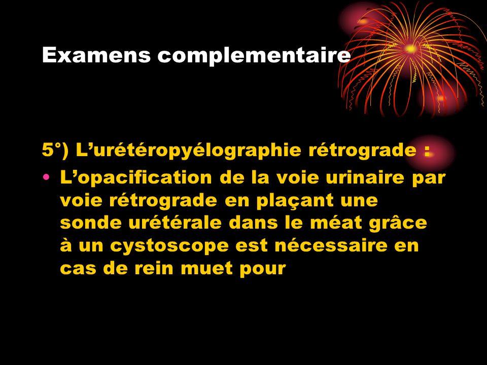 Examens complementaire 5°) Lurétéropyélographie rétrograde : Lopacification de la voie urinaire par voie rétrograde en plaçant une sonde urétérale dan