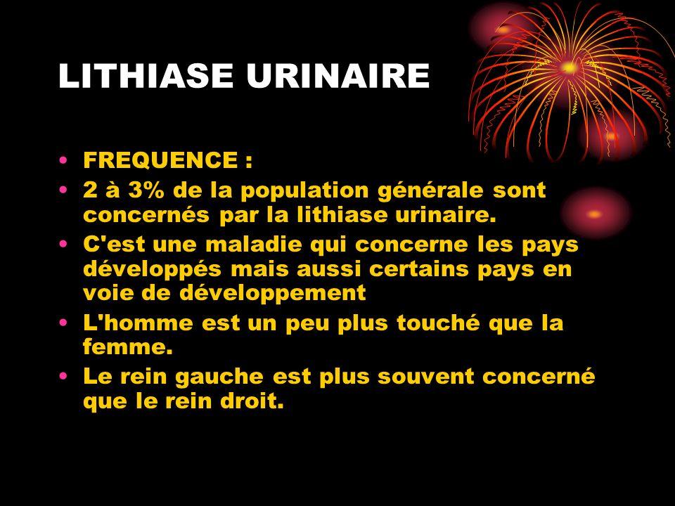LITHIASE URINAIRE FREQUENCE : 2 à 3% de la population générale sont concernés par la lithiase urinaire. C'est une maladie qui concerne les pays dévelo