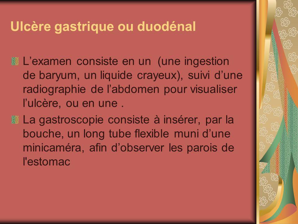 Ulcère gastrique ou duodénal Lexamen consiste en un (une ingestion de baryum, un liquide crayeux), suivi dune radiographie de labdomen pour visualiser