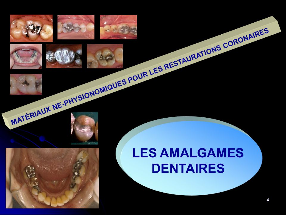 4 MATÉRIAUX NE-PHYSIONOMIQUES POUR LES RESTAURATIONS CORONAIRES LES AMALGAMES DENTAIRES