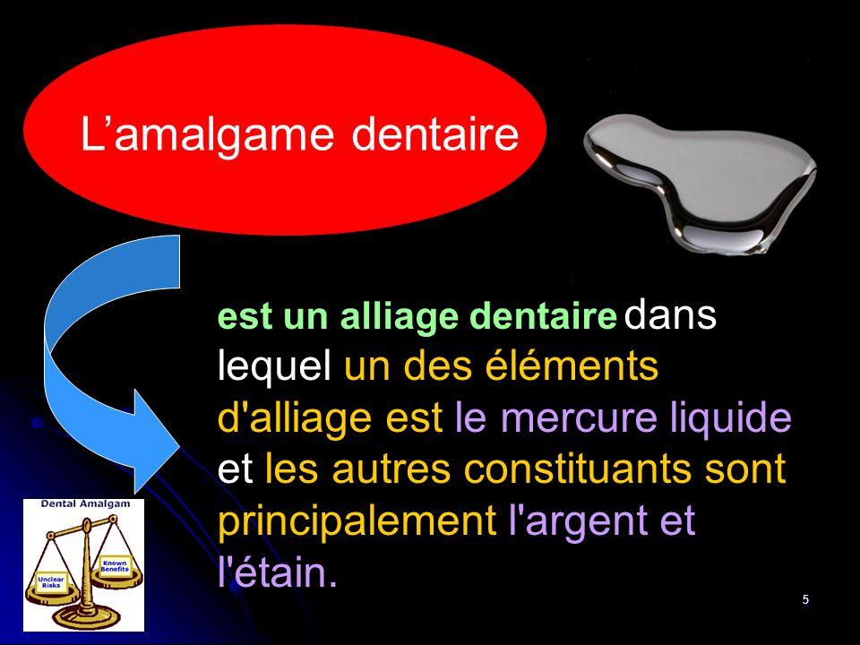 5 est un alliage dentaire dans lequel un des éléments d'alliage est le mercure liquide et les autres constituants sont principalement l'argent et l'ét