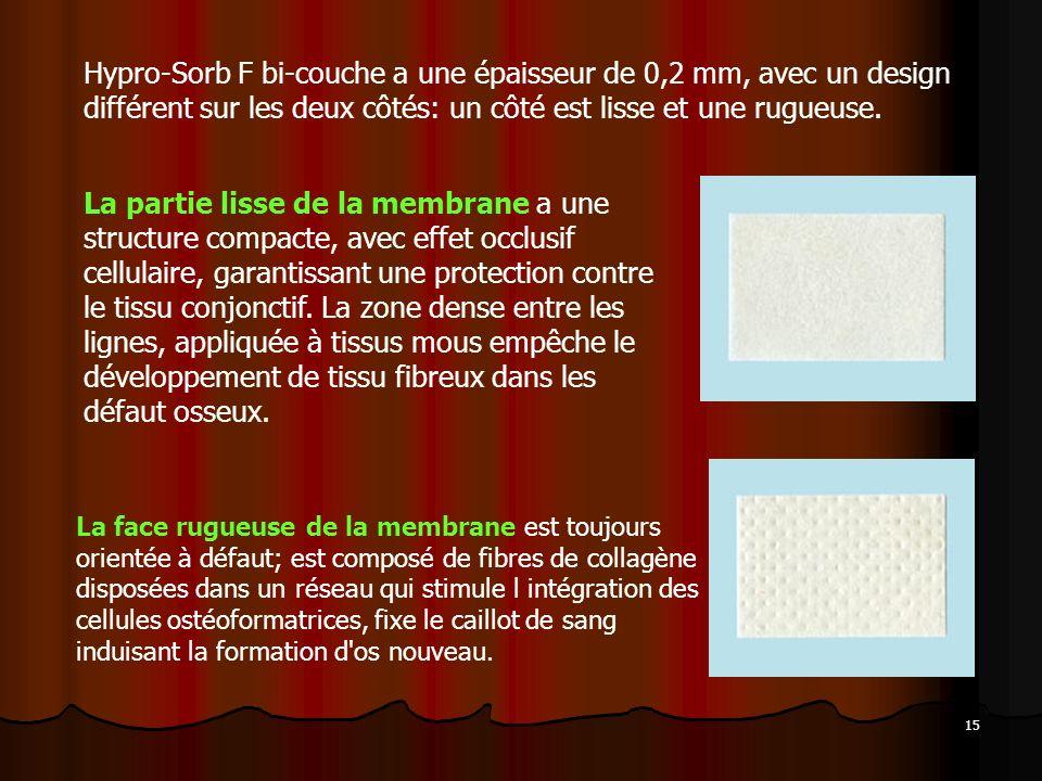 15 Hypro-Sorb F bi-couche a une épaisseur de 0,2 mm, avec un design différent sur les deux côtés: un côté est lisse et une rugueuse. La face rugueuse