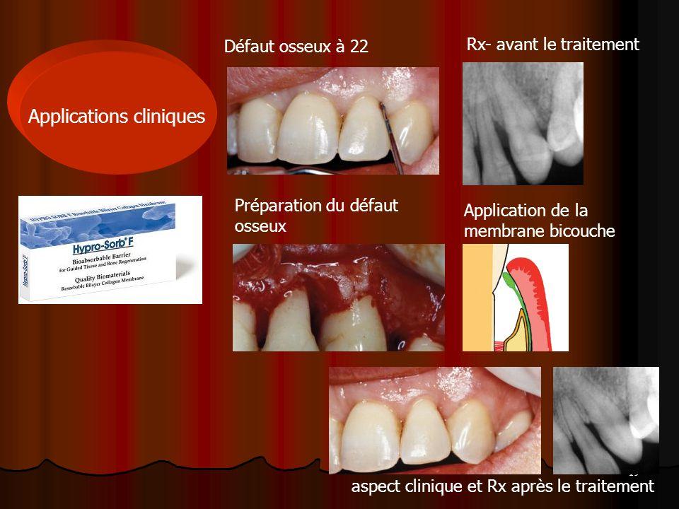 19 Applications cliniques Défaut osseux à 22 Rx- avant le traitement Préparation du défaut osseux Application de la membrane bicouche aspect clinique
