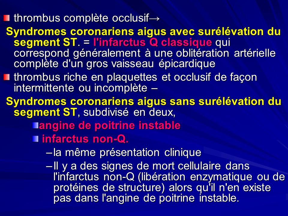 thrombuscomplète occlusif thrombus complète occlusif Syndromes coronariens aigus avec surélévation du segment ST. = l'infarctus Q classique qui corres