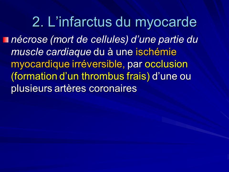 2. Linfarctus du myocarde du à une ischémie myocardique irréversible, par occlusion (formation dun thrombus frais) dune ou plusieurs artères coronaire