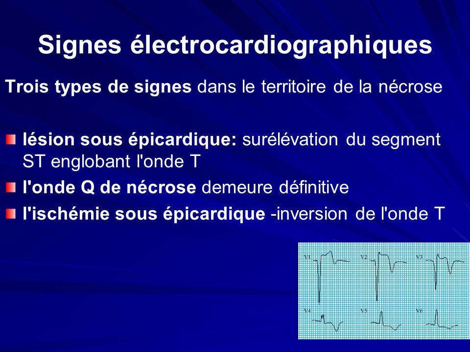 Signes électrocardiographiques Trois types de signes dans le territoire de la nécrose lésion sous épicardique: surélévation du segment ST englobant l'