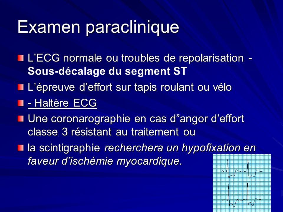 Examen paraclinique LECG normale ou troubles de repolarisation - LECG normale ou troubles de repolarisation - Sous-décalage du segment ST Lépreuve def