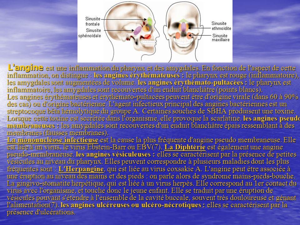 L angine est une inflammation du pharynx et des amygdales.