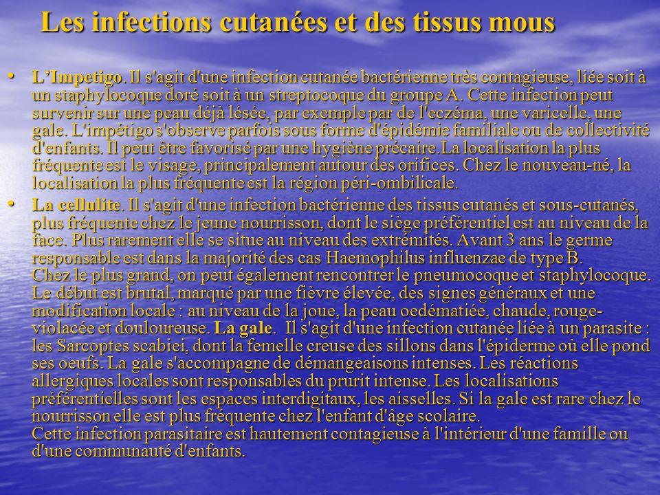 Les infections cutanées et des tissus mous LImpetigo.