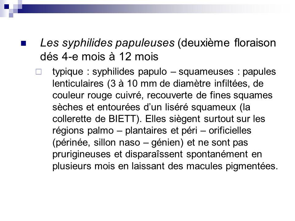 Les syphilides papuleuses (deuxième floraison dés 4-e mois à 12 mois typique : syphilides papulo – squameuses : papules lenticulaires (3 à 10 mm de di