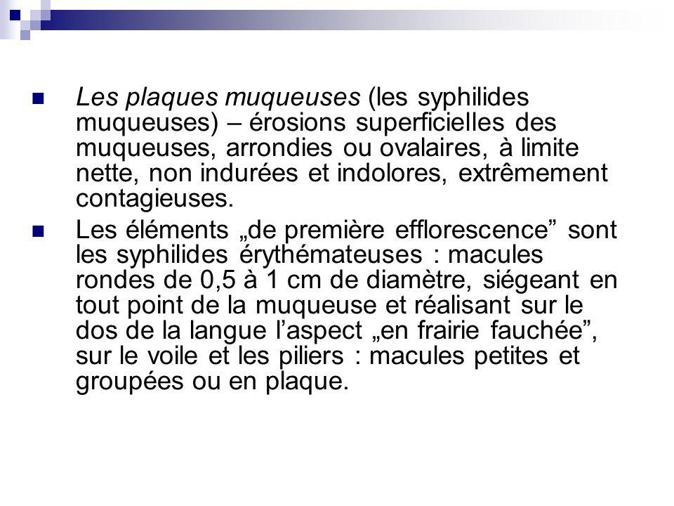 Les plaques muqueuses (les syphilides muqueuses) – érosions superficielles des muqueuses, arrondies ou ovalaires, à limite nette, non indurées et indo