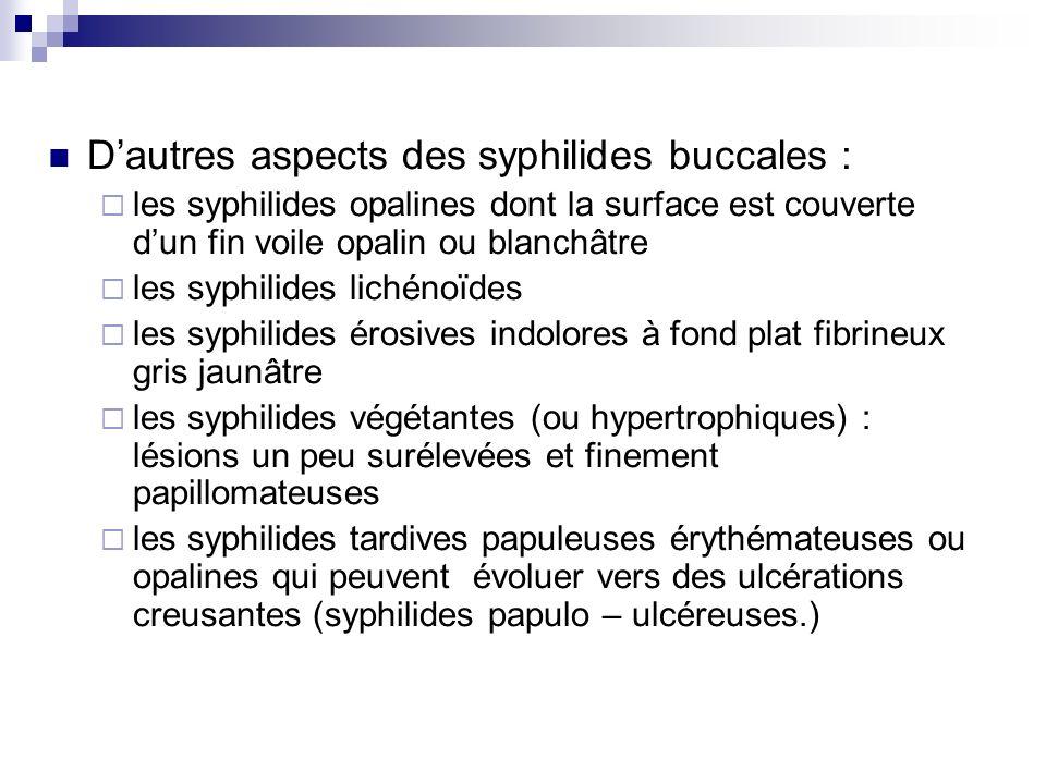 Dautres aspects des syphilides buccales : les syphilides opalines dont la surface est couverte dun fin voile opalin ou blanchâtre les syphilides liché