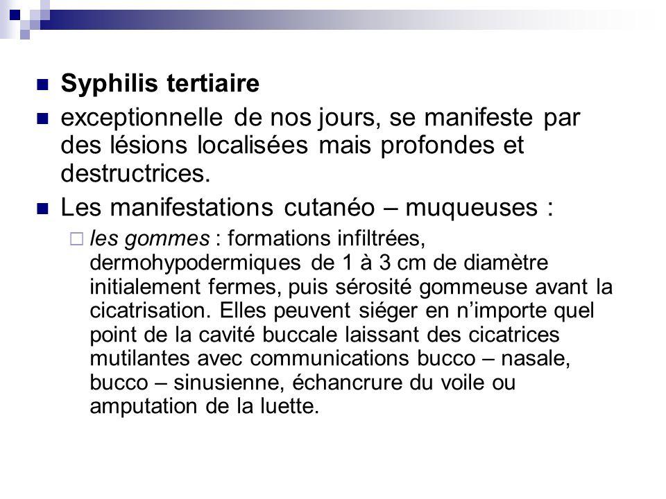Syphilis tertiaire exceptionnelle de nos jours, se manifeste par des lésions localisées mais profondes et destructrices. Les manifestations cutanéo –