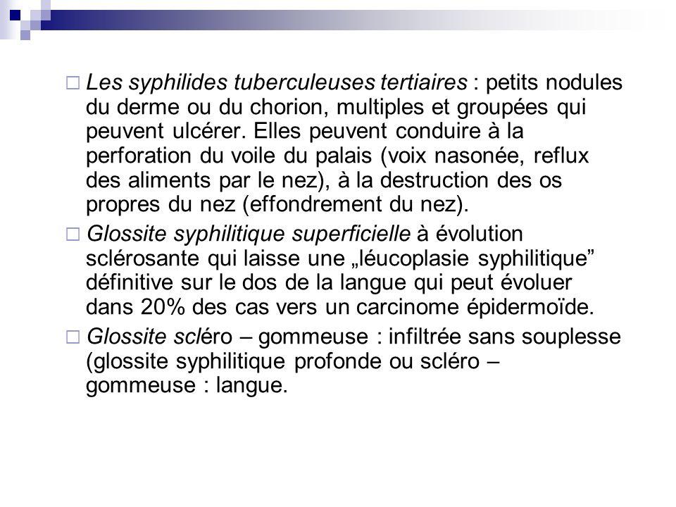Les syphilides tuberculeuses tertiaires : petits nodules du derme ou du chorion, multiples et groupées qui peuvent ulcérer. Elles peuvent conduire à l