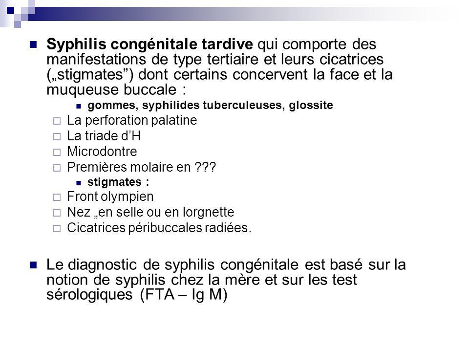 Syphilis congénitale tardive qui comporte des manifestations de type tertiaire et leurs cicatrices (stigmates) dont certains concervent la face et la