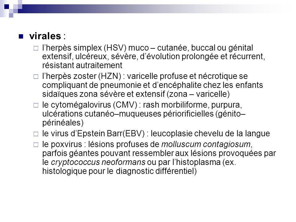 Lherpes simplex ? contagioso