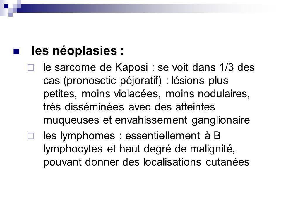 les néoplasies : le sarcome de Kaposi : se voit dans 1/3 des cas (pronosctic péjoratif) : lésions plus petites, moins violacées, moins nodulaires, trè
