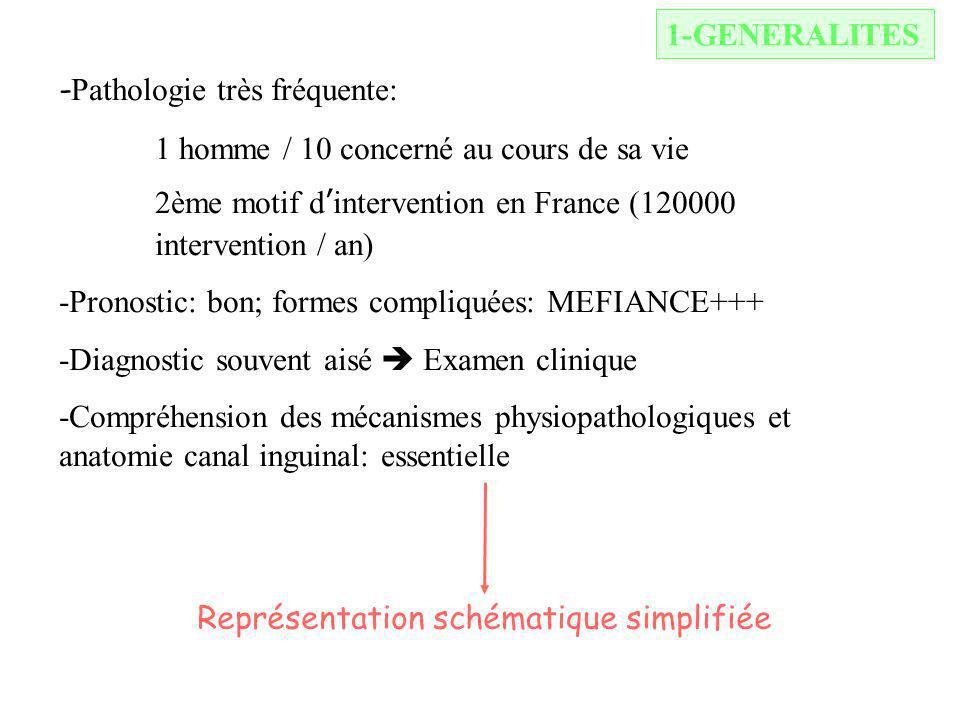 1-GENERALITES - Pathologie très fréquente: 1 homme / 10 concerné au cours de sa vie 2ème motif dintervention en France (120000 intervention / an) -Pronostic: bon; formes compliquées: MEFIANCE+++ -Diagnostic souvent aisé Examen clinique -Compréhension des mécanismes physiopathologiques et anatomie canal inguinal: essentielle Représentation schématique simplifiée (fin du cours)